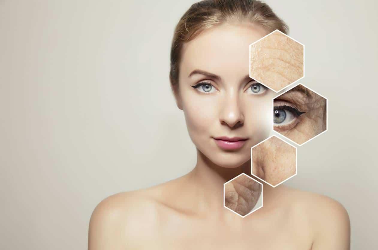 ácido hialurónico, beneficios para la piel