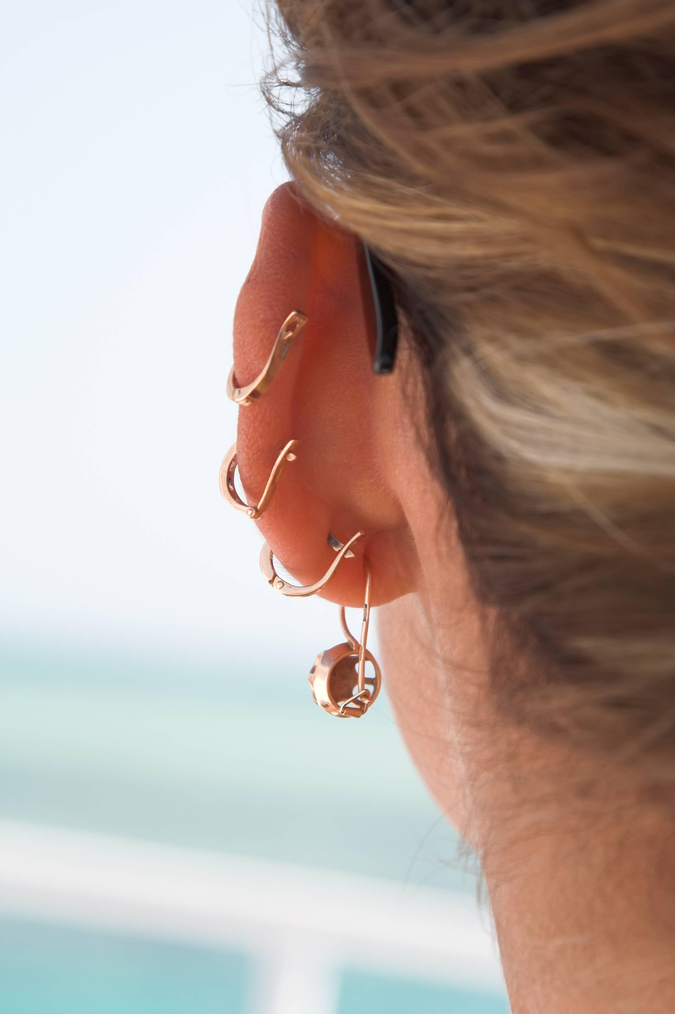 la perforación del oído